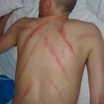 Massage au baume du tigre contre la grippe